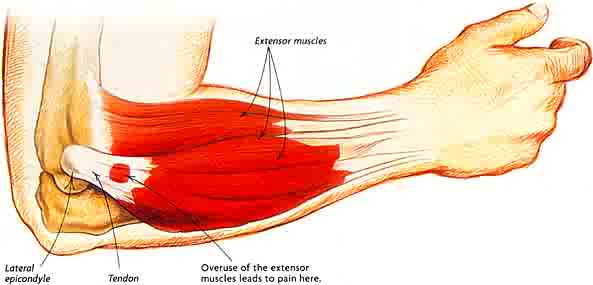 Tennis Elbow Diagnosis & Treatment - By Design Holistic Health