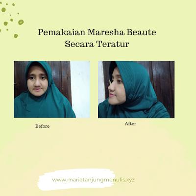 Before After Pemakaian Maresha skincare