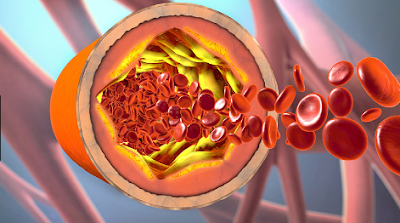 10 Signs Of A Blood Clot.