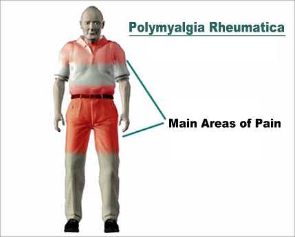 Areas Of Pain In Polymyalgia Rheumatica