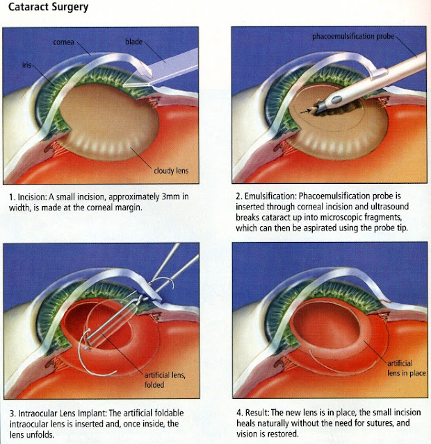 Procedure of catarct surgery