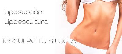 Consejos cirugía liposucción lipoescultura