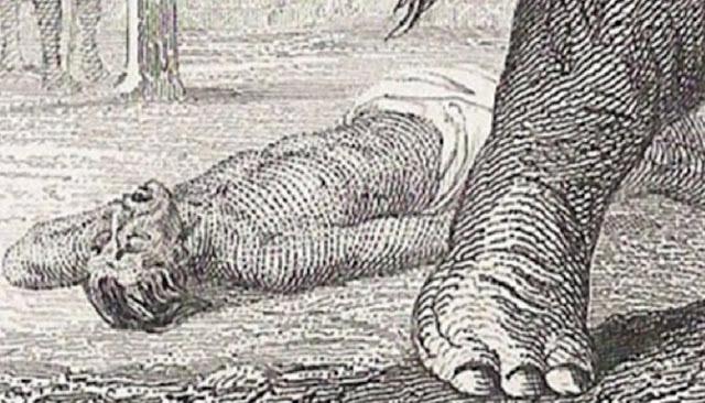 Lima Cara Kematian Paling Aneh Di Dunia Yang Pernah Tercatat