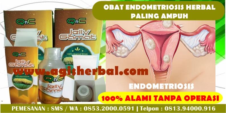 Nama Obat Penyakit Endometriosis Di Apotik
