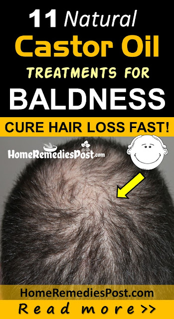 Castor Oil for Baldness, Home Remedies for Baldness, How To Get Rid Of Hair Loss, How To Get Rid Of Baldness, how to stop hair loss,