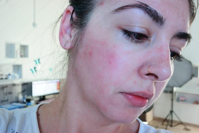 pele sem manchas, peeling, manchas de pele, esfoliação, bicarbonato, tratamento para manchas, alerta