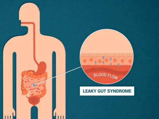 How is leaky gut syndrome treated?
