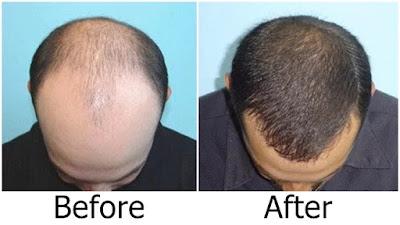 Before After Setelah Pakai Puritans Pride Ultra Biotin 7500 mcg Untuk Menumbuhkan Rambut Botak
