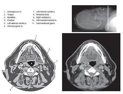 cervical ct scan