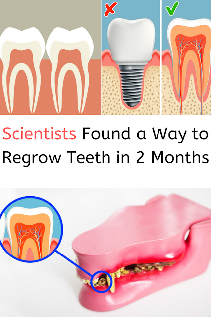 Scientists Found a Way to Regrow Teeth in 2 Months