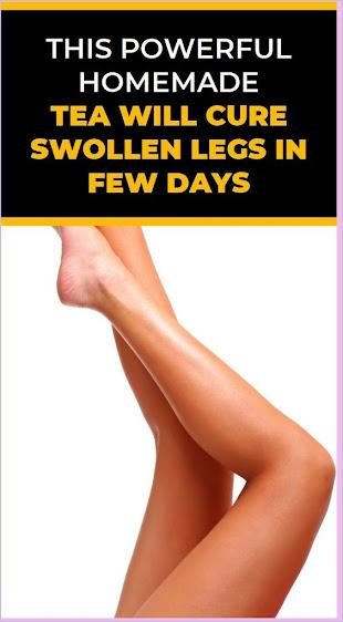 Cure Swollen Legs In Few Days