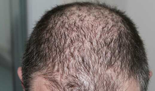 طريقة لمنع تساقط الشعر العلاج