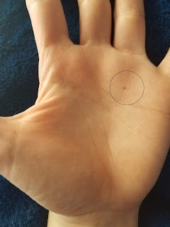 Meaning Of Mole On Sun Line Palmistry