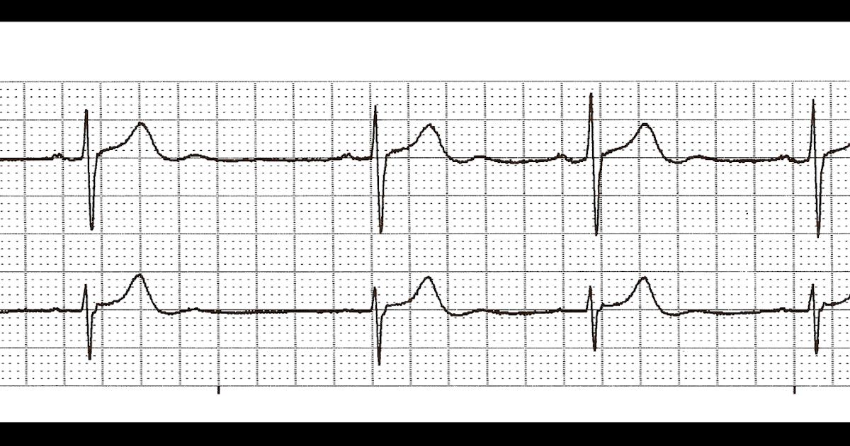 Float Nurse: Practice EKG Strips 308