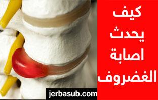 تكلفة عملية الغضروف في السعودية