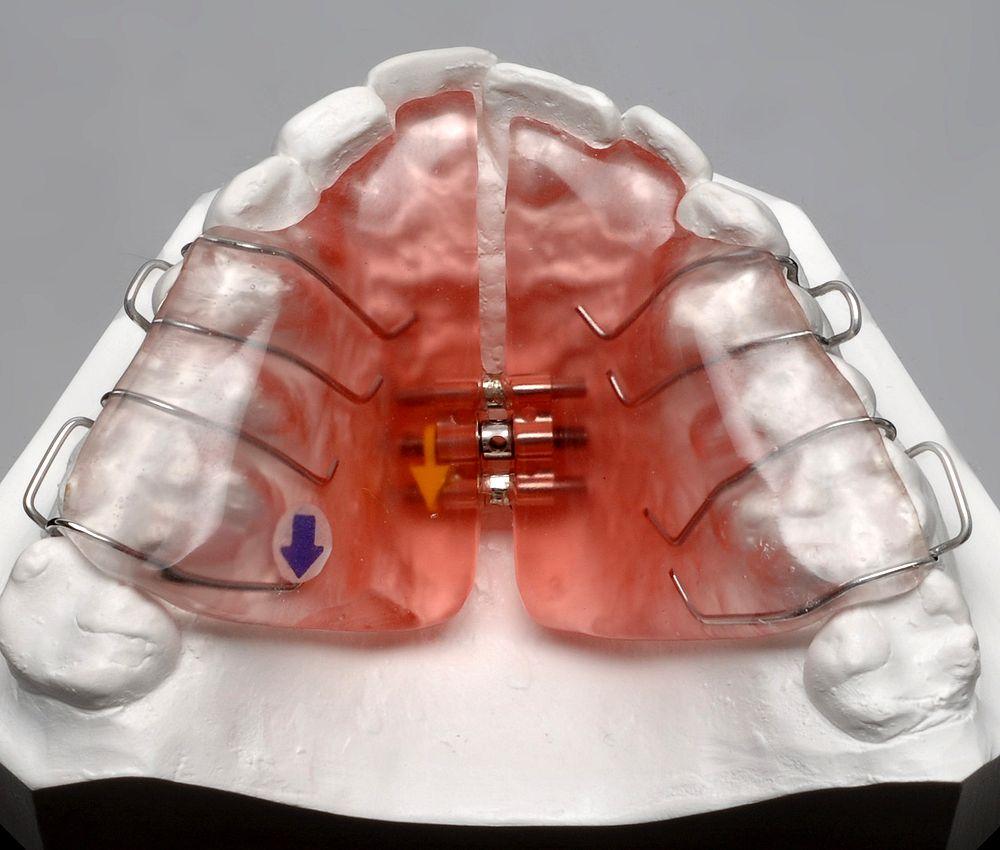 placa-hawley-ortopedia
