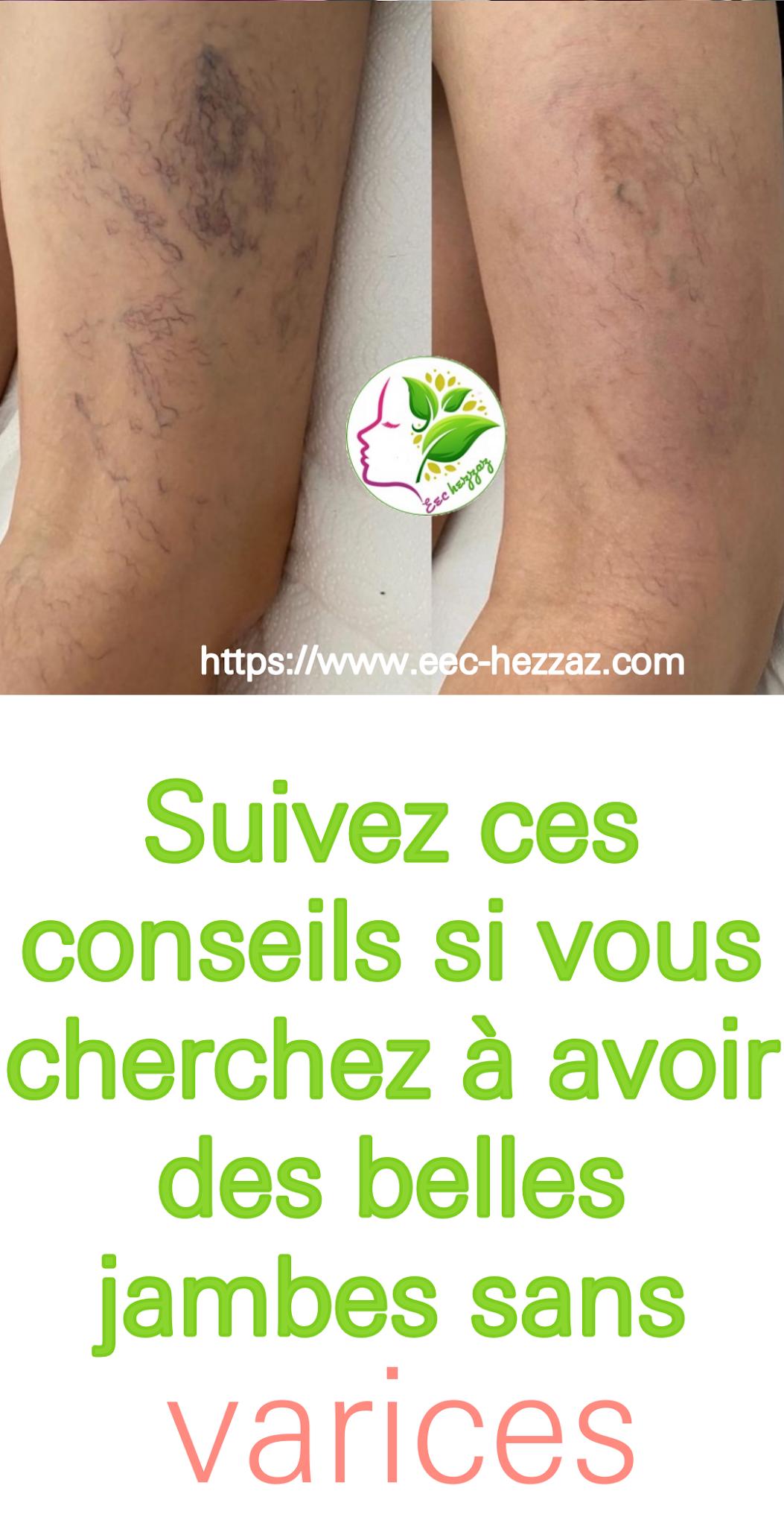 Suivez ces conseils si vous cherchez à avoir des belles jambes sans varices