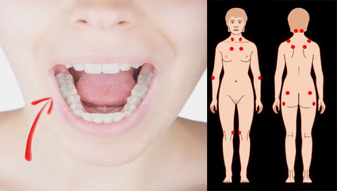 Enfermedades bucales relacionadas con la Fibromialgia