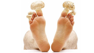 cure the skin fungus with garlic naturally