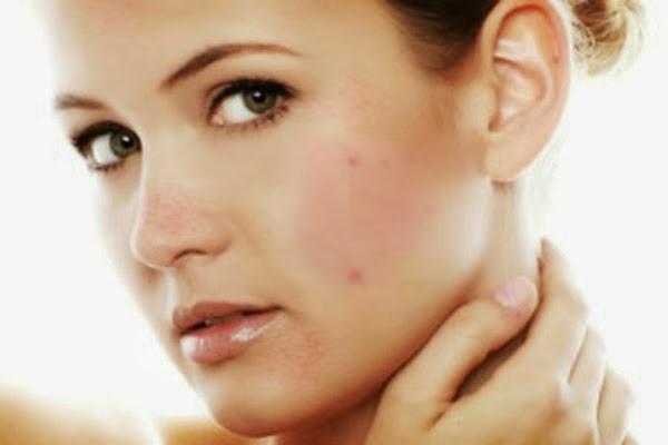 Kết quả hình ảnh cho Làm sao biết da có dị ứng mỹ phẩm không?