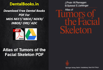 Atlas of Tumors of the Facial Skeleton PDF
