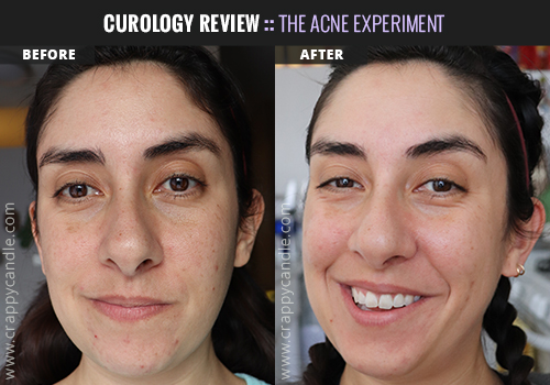 Curology Before & After (4 Months) - The Acne Experiment