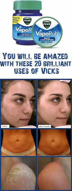 9 Surprising Uses for Vicks VapoRub