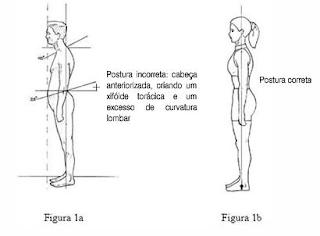 Cirurgia na Coluna - Artrodese lombar Vícios posturais