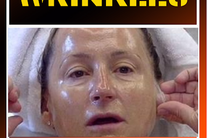 DERMATOLOGISTS CAN'T BELIEVE SHE USED THIS TO ERASE HER WRINKLES