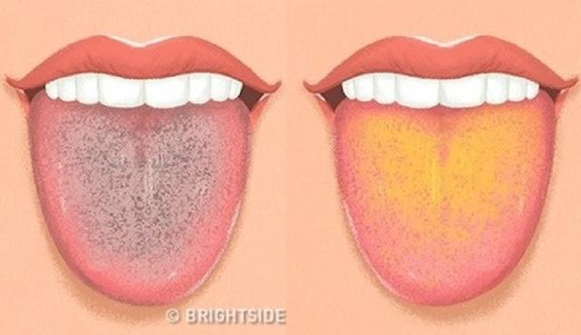 Jangan Abaikan Tips Mudah Ini, Ambil Kaca dan Julurkan Lidahmu, Ternyata Warna Lidah Menunjukkan Kondisi Kesehatanmu!