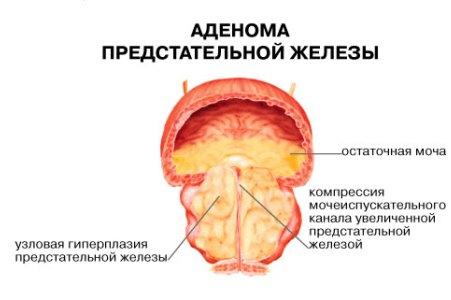 сигареты и простатита