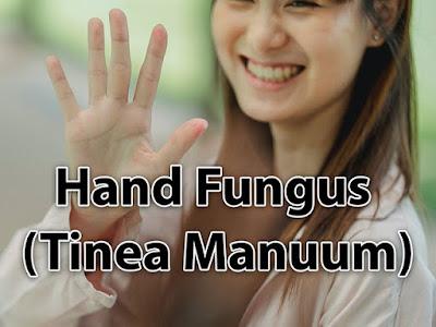 Hand Fungus (Tinea Manuum)