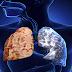 Ο ρόλος της Φυσικοθεραπείας στη Χρόνια Αποφρακτική Πνευμονοπάθεια