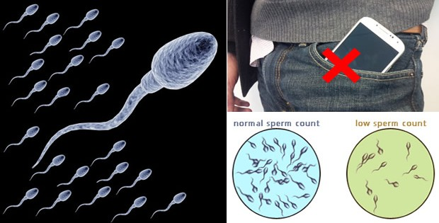 9 Things You Do Every Day That Are Lowering Your Sperm Count