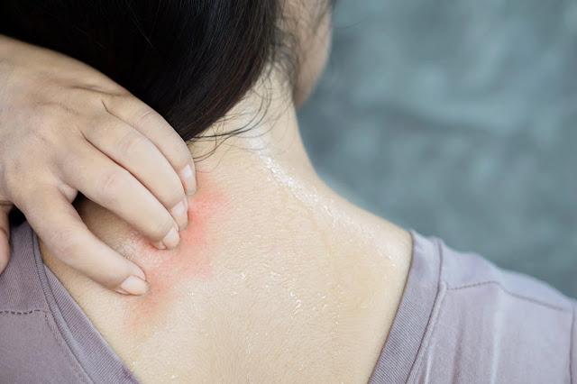 sweating girl allergies