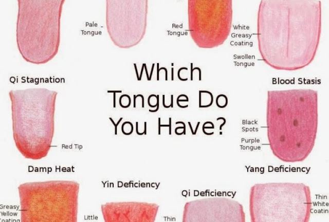 What is the color of the changed tongue to diagnose an illness?