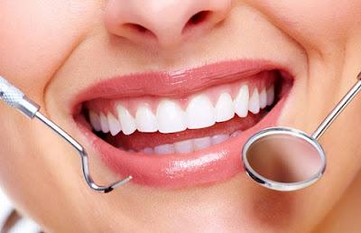 răng sứ sử dụng được bao lâu -6