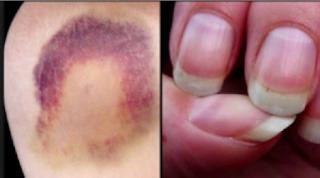 Ovo je 10 simptoma RAKA koje žene većinom IGNORIŠU a mogu vam SPASITI ŽIVOT!