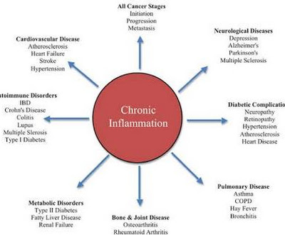 What you should know about Chronic Inflammation and what makes it the maim driving reason for death in United State