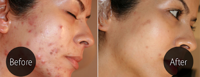 Remove Pimple Scars by Skin Grafting