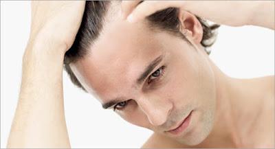 ArganRain Androgenic Alopecia