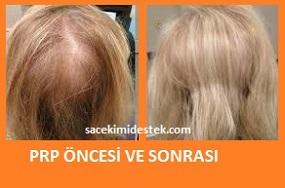 prp saç tedavisi yaptıranlar 18