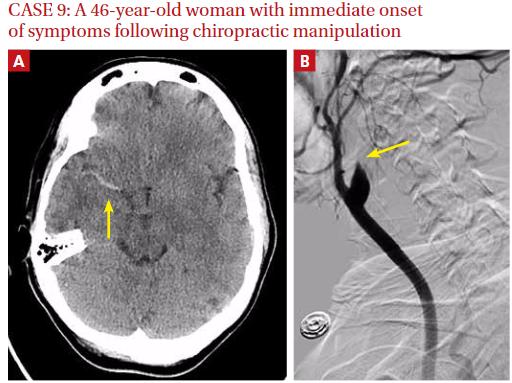 図:カイロプラティックの頚椎操作で頸部動脈解離