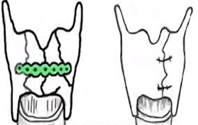 managing-laryngal-trauma