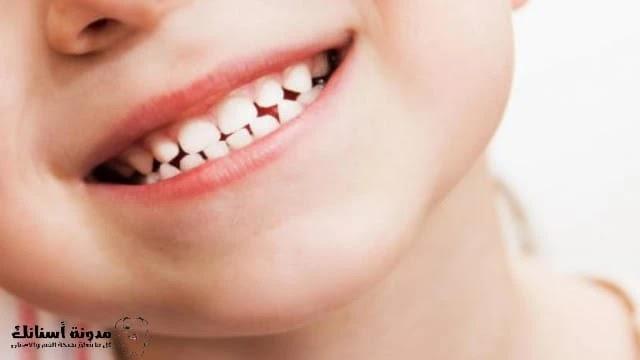 6 طرق طبيعية لتبييض الأسنان .
