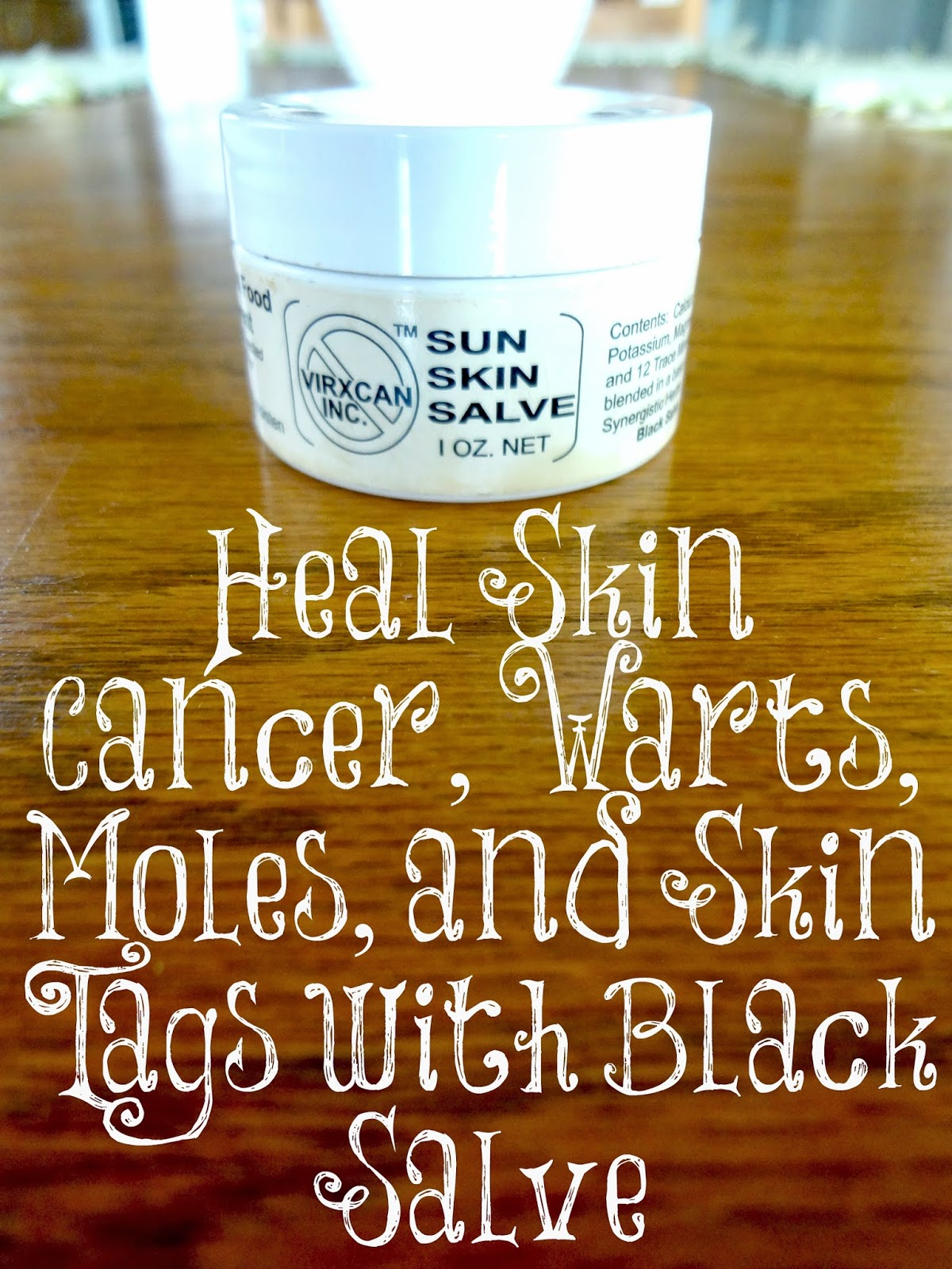 Always Learning: Heal Skin Cancer, Warts, Moles, and Skin