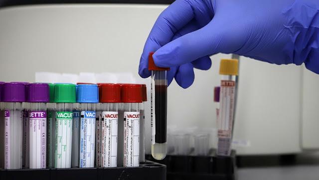 Hospitales de Moscú reúnen más de una tonelada de plasma con anticuerpos para tratar a pacientes con covid-19