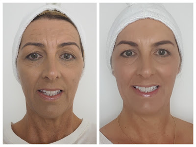 before and after botox and dermal filler treatments