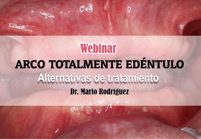 WEBINAR: Arco Totalmente Edéntulo - Alternativas de tratamiento - Dr. Mario Rodríguez