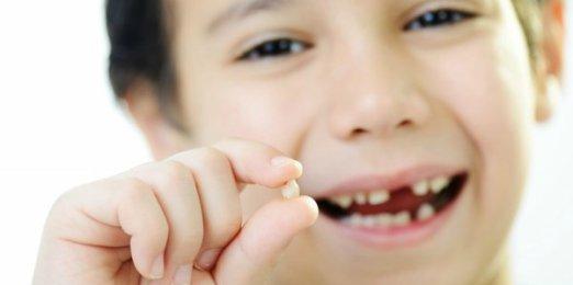 Tips Mengobati Sakit Gigi Pada Anak Umur 2,3 Dan 4 Tahun ...